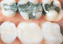 Replacement-of-Amalga-Fillings